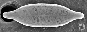 A diatom (Neidium staturaium).