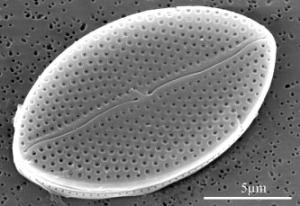 A diatom.