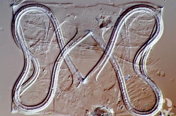 A diatom specimen.