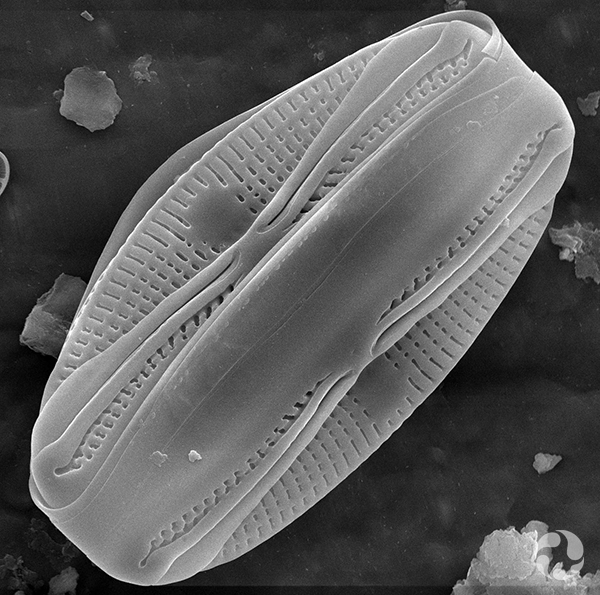 A diatom seen through magnification.