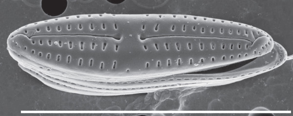 A microscopic closeup of a marine diatom.