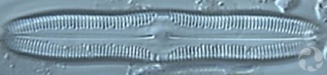 A diatom viewed under a microscope.