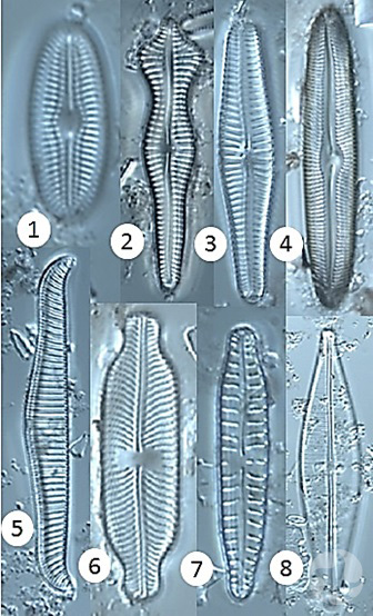 Composite of diatoms viewed through a microscope.