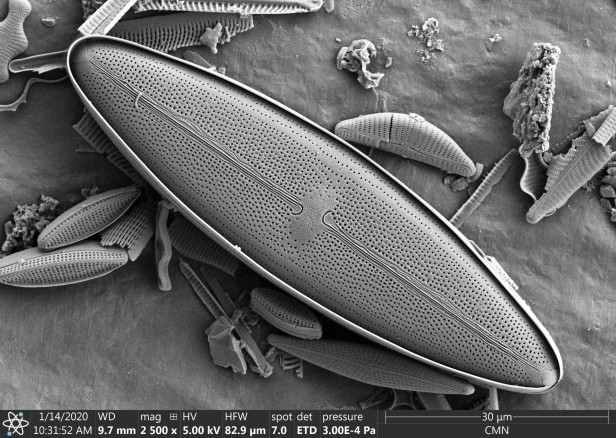 A grayscale image of an oval-shaped, 20 x 80 micron diatom.