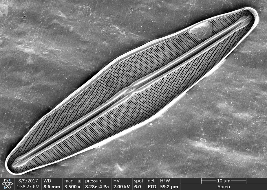 This image is a black and white electron micrograph of a single diatom. It is oval-shaped, with the longer axis arranged diagonally. There is a dark groove in the centre of the diatom.